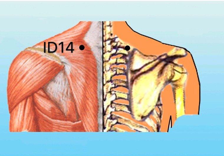 punto id14 jianwaishu anatomia