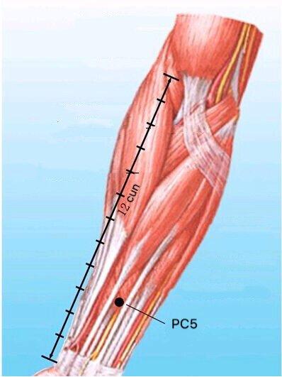 punto pc5 jianshi anatomia
