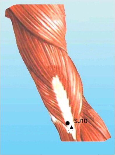 punto sj10 tianjing anatomia