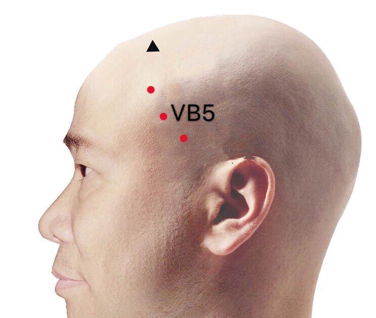 punto vb5 xuanlu