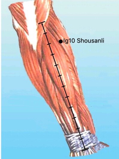 punto ig10 shousanli anatomia
