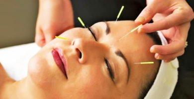 acupuntura para la belleza