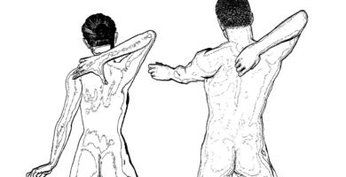 pinzamiento de vertebras lumbar