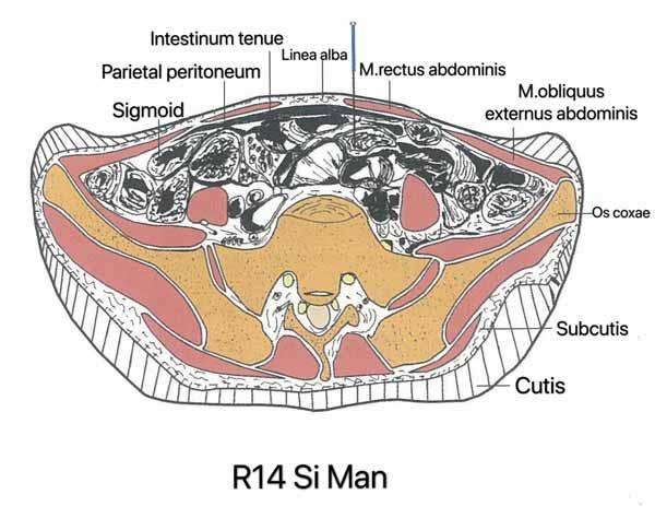 punto riñón 14