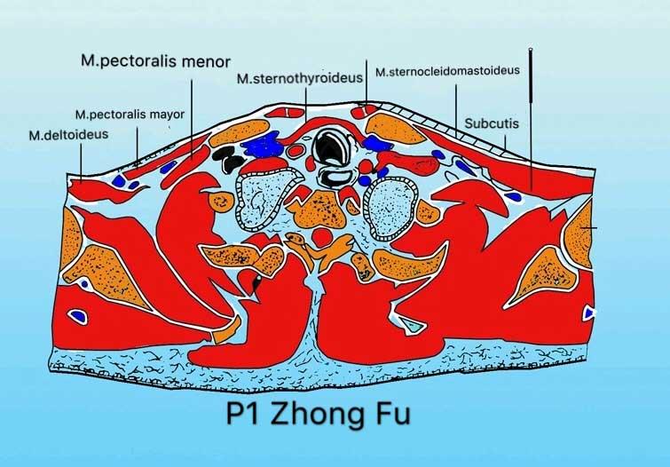 corte transversal punto p1 zhong fu