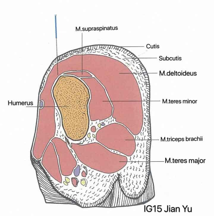 punto ig15 jian yu