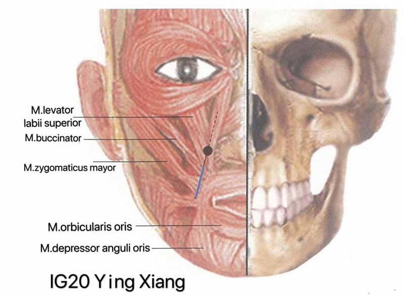 metodo acupuntura ig20 ying xiang