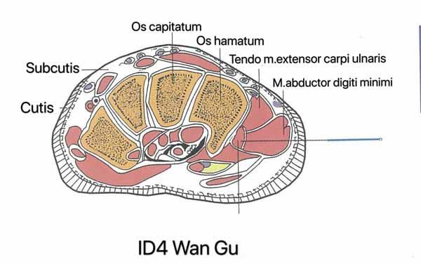 punto intestino delgado 4