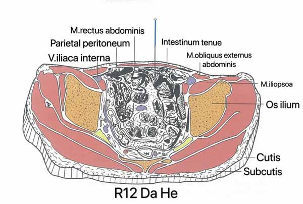 punto riñón 12