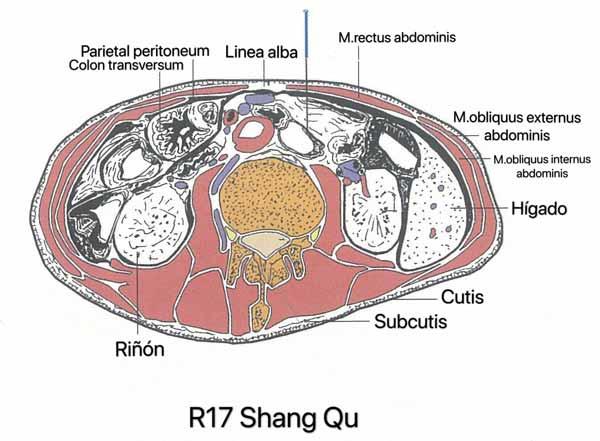 punto riñón 17