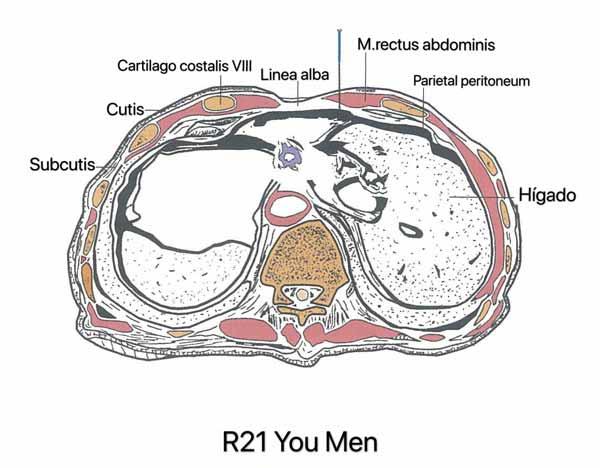 punto riñón 21