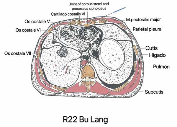 punto riñón 22