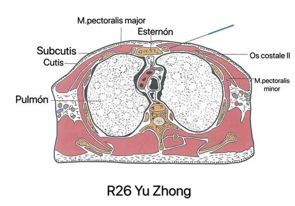 punto riñón 26