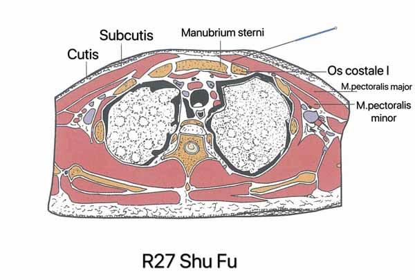 punto riñón 27