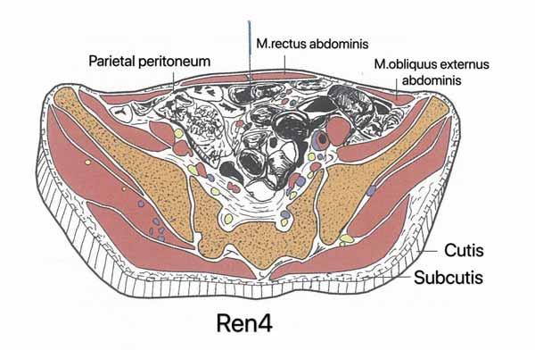 punto ren4