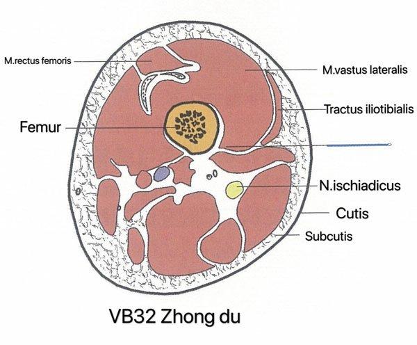 punto vesiculo biliar 32