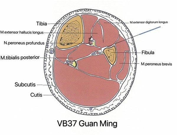 punto vesiculo biliar 37