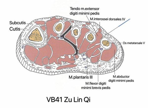 punto vesiculo biliar 41